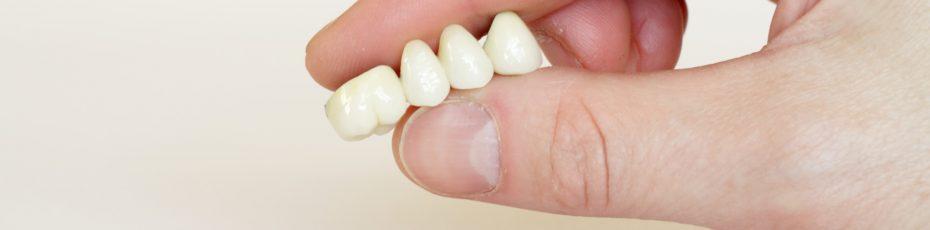 an introduction to dental bridges