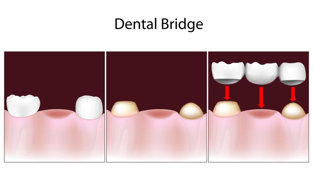 variants-of-dental-bridges-suitable-for-you